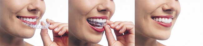 Invisalign Dentist in Crestview Hills